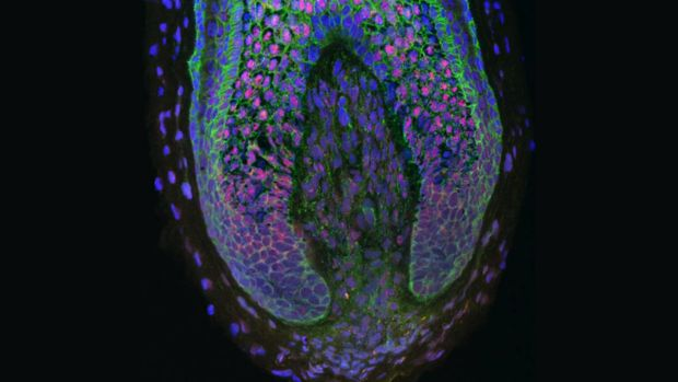 CUIMC Tissue Engineering of Human Hair Follicles